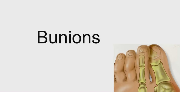 Common foot disorders in adults