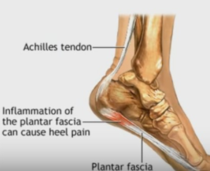 Plantar Fasciitis, Foot Pain Problems